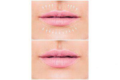 mejor rellenador de labios
